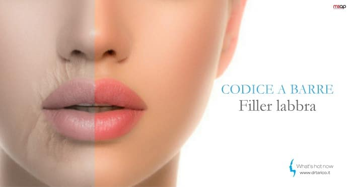 Codice a barre sul contorno labbra? Acido ialuronico e botulino