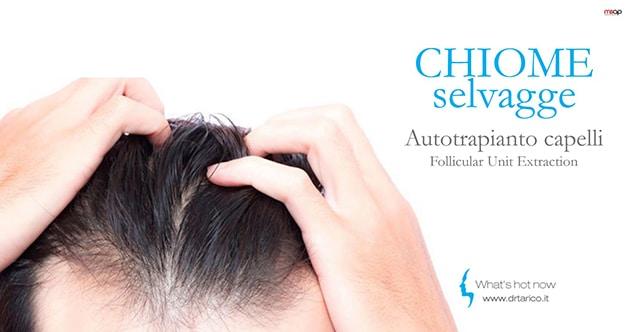 Autotrapianto capelli. I vantaggi della tecnica FUE