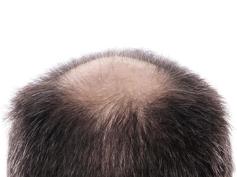 autotrapianto capelli con tecnica fue