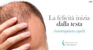 Microchirurgia e Hair Terapy: Autotrapianto dei capelli? la password è FUE!