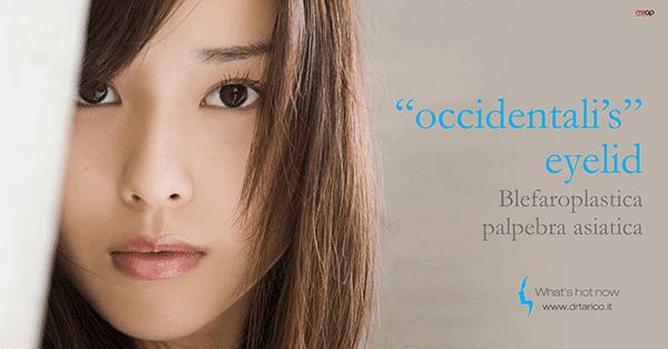 La blefaroplastica asiatica: ricostruzione della piega palpebrale nella palpebra orientale
