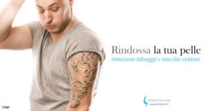 Pentiti del tatuaggio? Rimozione facile e indolore con laser treatment.