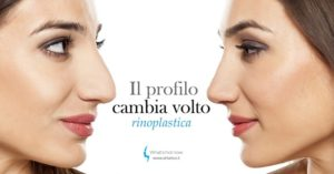 Rinoplastica ID: l'importanza di un buon profilo personale e identitario.