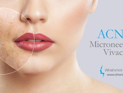 Cicatrici da acne? Vivace, il nuovo trattamento che rigenera la pelle