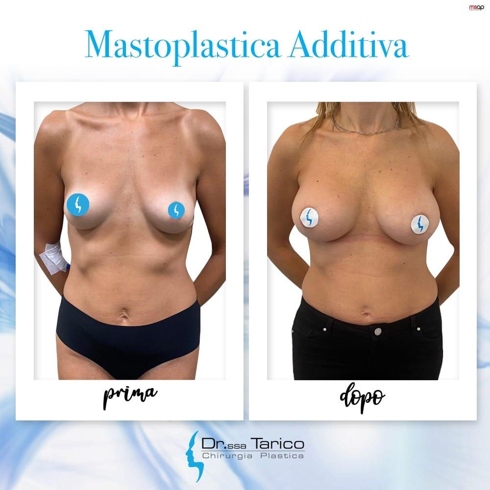 mastoplastica-additiva-catania
